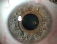 3e13e95a06 Precio de lentes intraoculares - Operación de Ojos